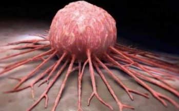 مناهج حديثة للتشخيص المبكر لأمراض السرطان وتحسين معدل العمر ونوعية الحياة المرضي من خلال نظم الجيل الثاني لتحليل تسلسل الجينات الوراثية