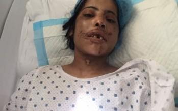 نازح سوري يعتدي على زوجته بطريقة وحشية