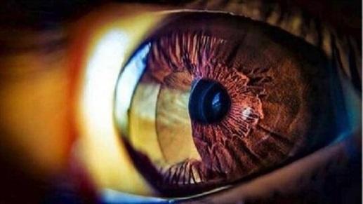 علامات تظهر في العين تُشير إلى مشاكل صحية في الجسم