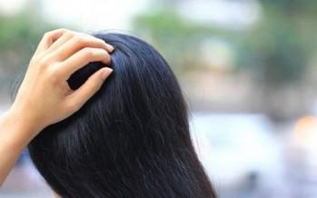 أسباب شائعة لحكّة فروة الرأس