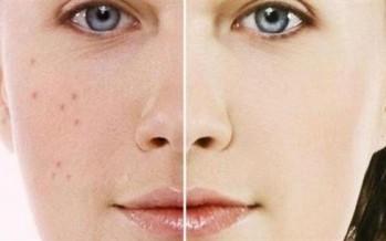 3 طرق لإزالة بقع الوجه بسرعة