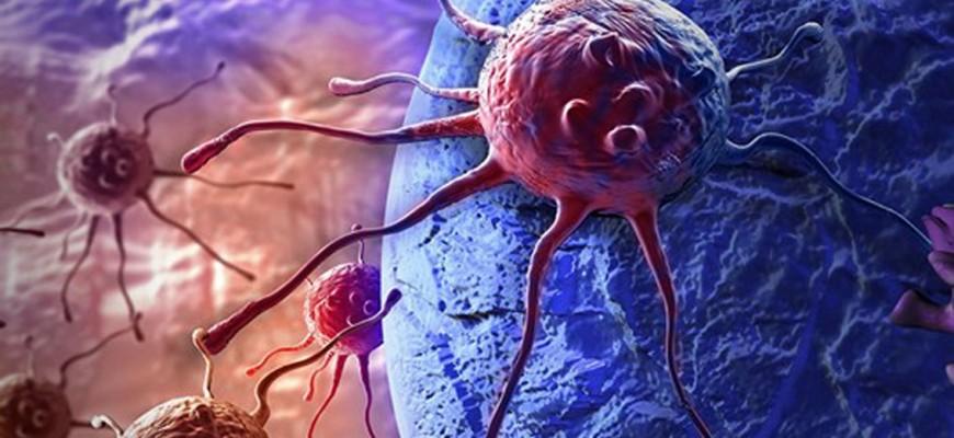 ست علامات تحذيرية لانتشار ورم سرطاني في الأمعاء إلى العظام!