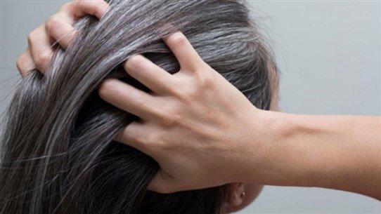 كيف يؤثّر التوتر على لون الشعر؟